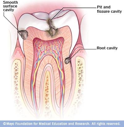 I'm wondering why are my teeth rotting from the inside out?