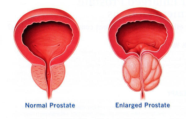 What can I do if my father is suffering from prostatomegaly what kind of medical treatment he should nee?