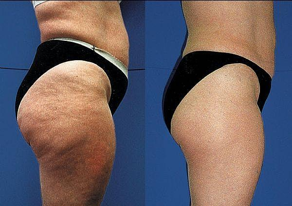 Is it possible to permanently get rid of cellulite? I am 22 years old and recently noticed that I got cellulite on my legs.