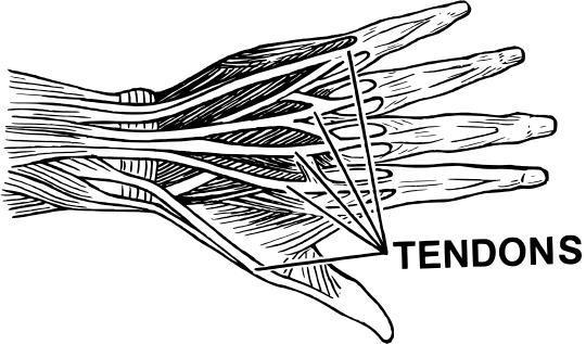 Can there be any self-treatment for tendonitis in my achilles?