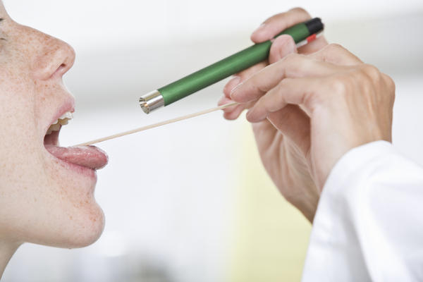 What is the best OTC medicine for tonsillitis?
