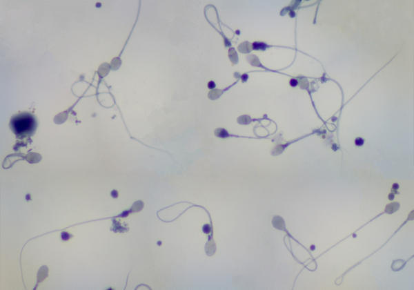 Sperm motility is 50% but grade 4 and 3 with forward progression was 10 and 20% respectively. Is it low motility?