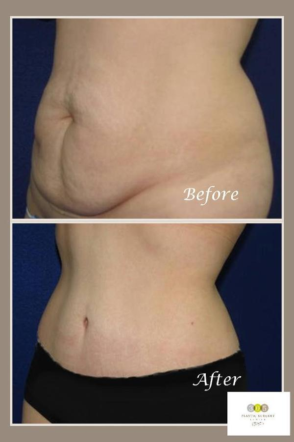 Who makes a good candidate for a tummy tuck?