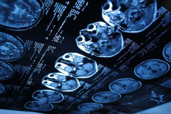 What is the definition or description of: pet scan?