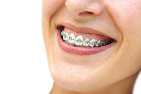 I have a missing tooth and a few other teeth have tipped into the space. What can I do? My general dentist recommended that i go see an orthodontist because he says that braces or invisalign can straighten my teeth. In one area there is a tooth missing sh