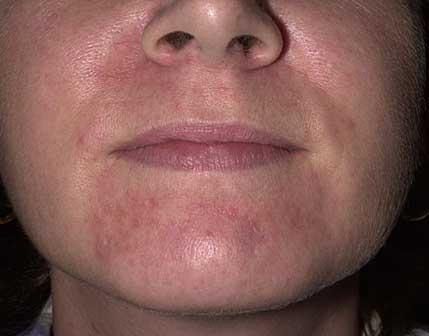 What is the difference between rosacea and eczematous dry skin?