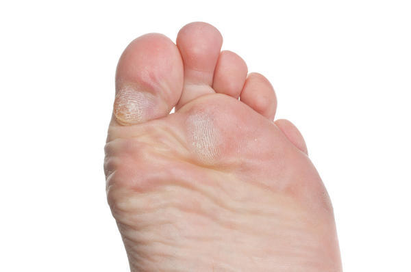 How can you most effectively end dry callus feet?