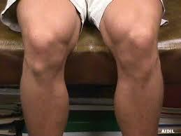 What could a hard, painless bump on outer knee be?
