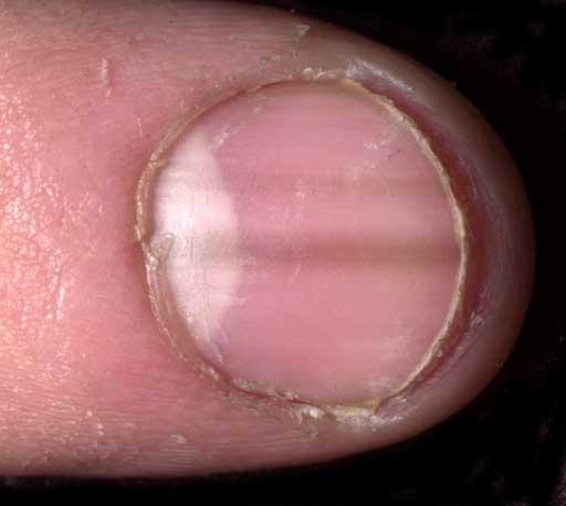 I have these white tough material strings that are under the nails and are fading, however in the process they are turning dark part way.... Melanoma?