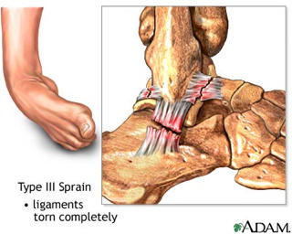How quickly does an atfl ligament tear need to get repaired?