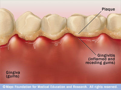 What is the cause of red, swollen gums around the teeth?