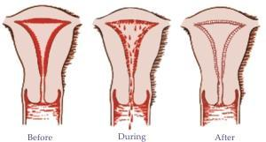 Brown flow at midpoint of menstrual period? Ovulation or pregnancy?