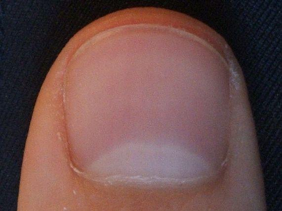 I have yellow fingernails. I don't smoke. Also have diabetes, low thyroid, fibro, osteoarithis, any suggestions as to why?