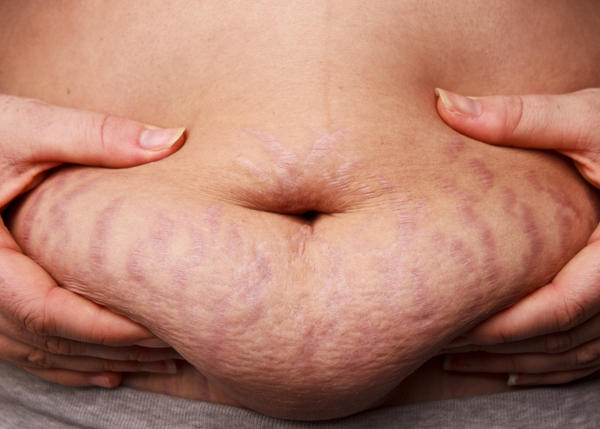 What is the most effective way to get rid or fade away stretch marks?
