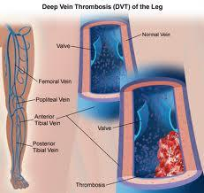 What risks are associated with blood clots?
