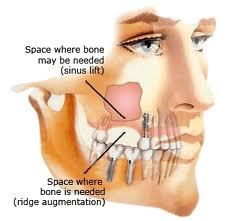 Could TMJ cause sinus and balance problems?