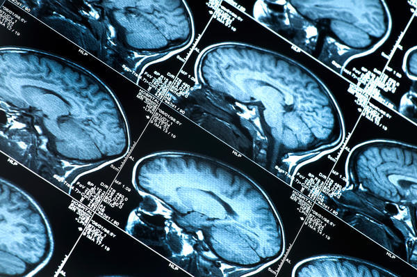 Are vascular malformations in the brain hereditary and would a MRI show one?
