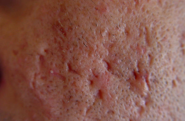 Can you please talk about of the natural yet effective ways to remove acne scars ?