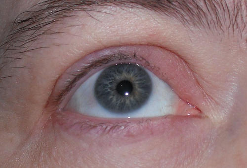 Please describe the white bumps and red swelling on my eye lid?
