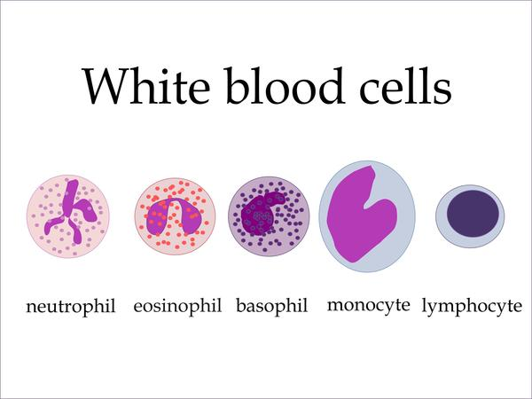 What are the symptoms for high white cells?