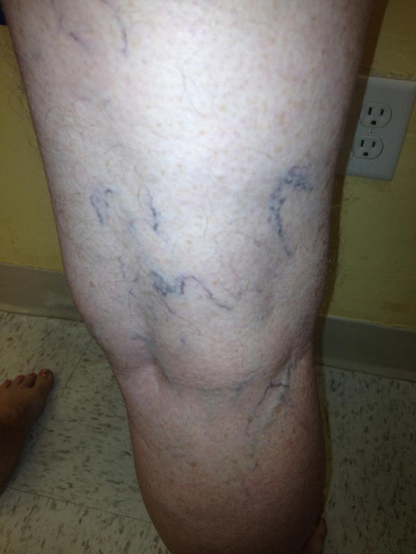 Hello, im 22 yrs old. Start noticing blue veins on the back of my legs, especially on the other side of knees. Could this be varicose?