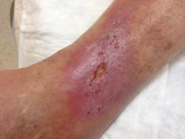 Can you get a staph infection from a venous ulcer?