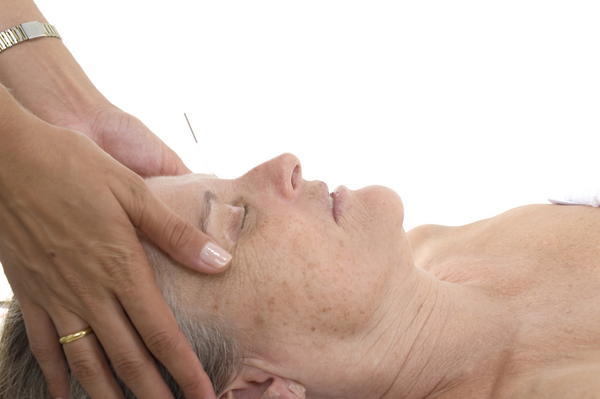 Acupuncture for mdd and severe insomnia. Thoughts?