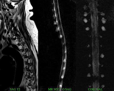 I had an MRI scan on my neck and I was diagnosed with a cyst in a nerve in my neck. What does this mean?