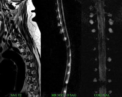 A cyst discovered after an MRI on a nerve in the neck?