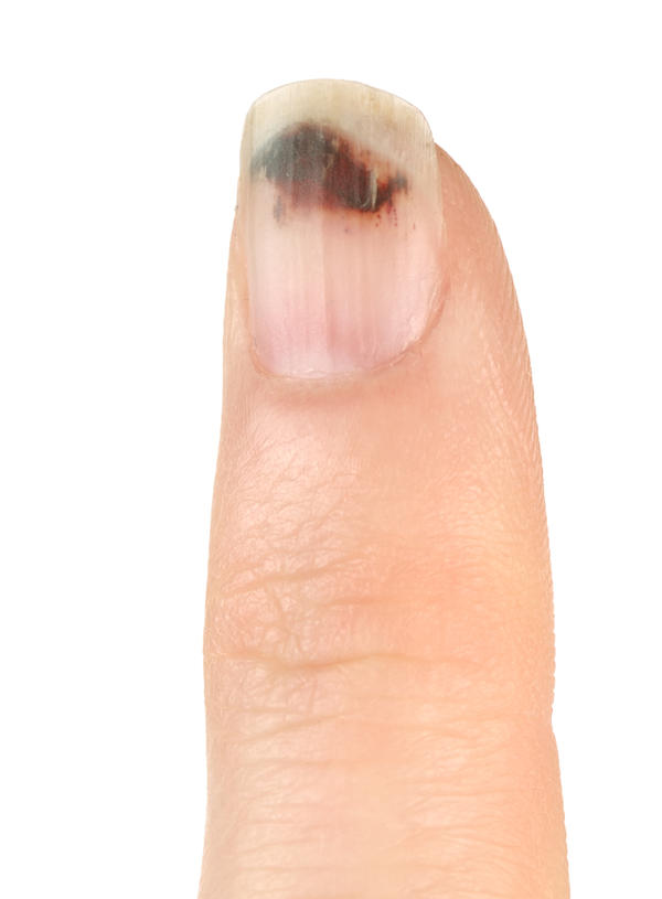 White fingers with black area - Things You Didn\'t Know