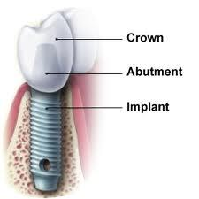 I had dental implants (3) put in a week ago and my gums are just now swelling hugely and like a blister.