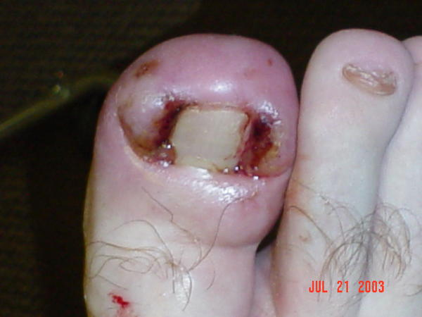 After Ingrown Toenail Removal Answers On Healthtap