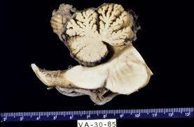 What is the difference between vermian hypoplasia and vermin atrophy and it signs?