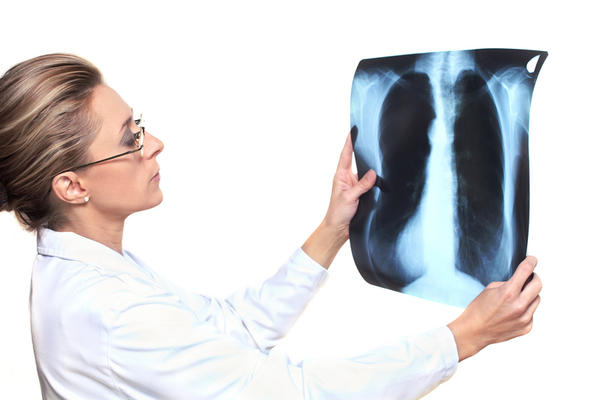 Do i need to wait until my lung infection clears up before getting a chest X-ray to check for cancer?  Would the infection mask the cancer on x-ray?