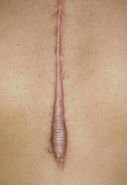 How can one treat kaeloid?