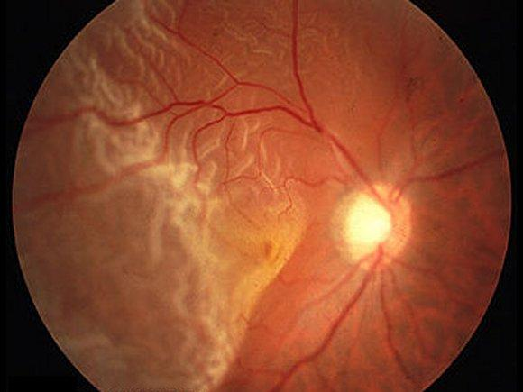 What are the risks in labor and delivery for a pregnant mother who had retinal detachment surgery during pregnancy?