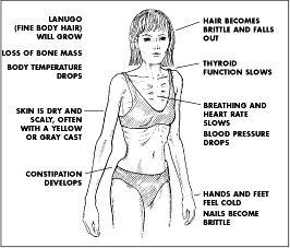 What are the most common symptoms, deficincies and complications of anorexia?