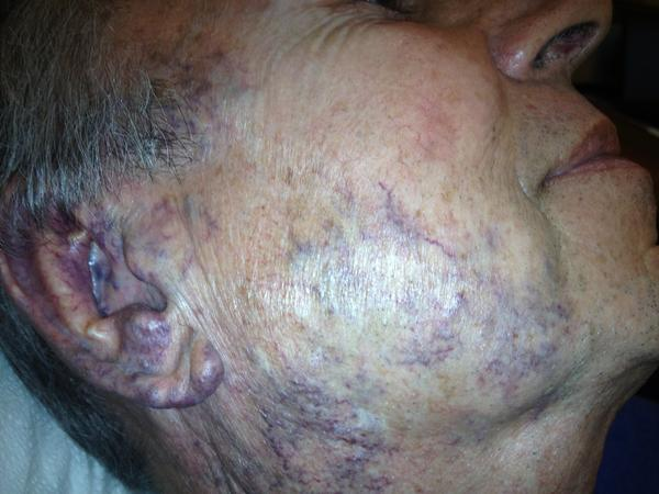 What are some treatments for facial spider veins?