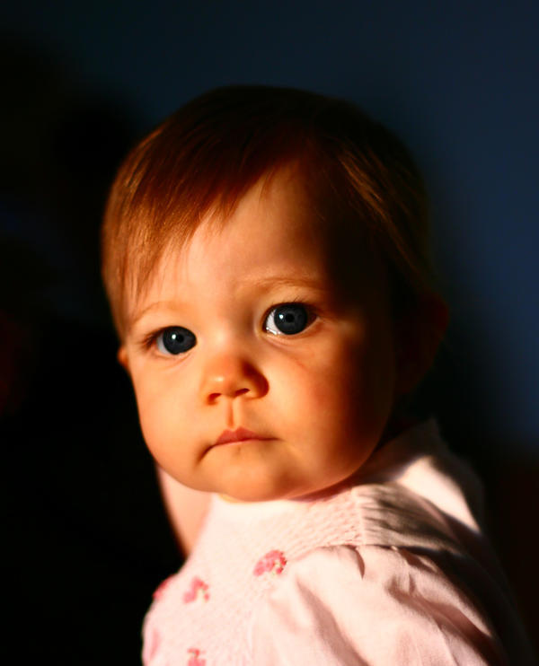 I'm wondering why are childhood cases of whooping cough (pertussis) in children on the rise?
