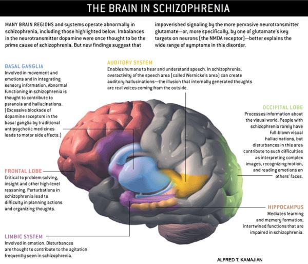 How does schizophrenia affect certain sections of the brain?