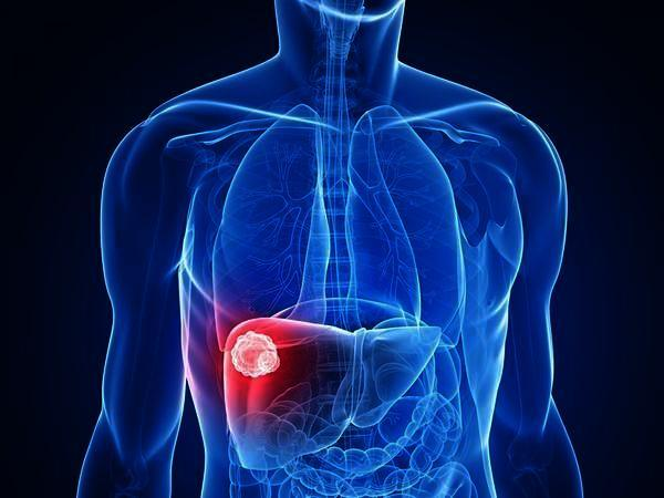 Is fatty liver dangerous?