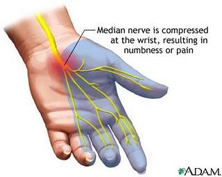 Can carpal tunnel syndrome go into the joint?