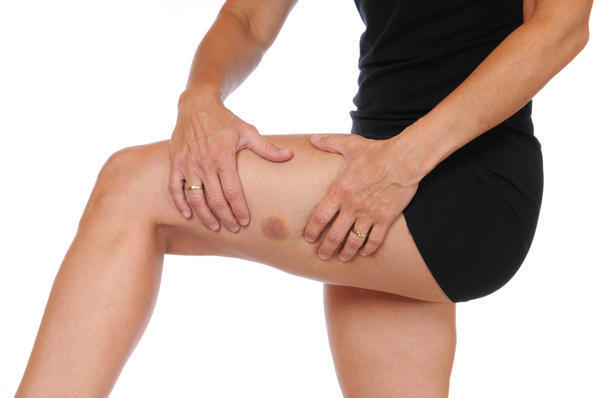 How to treat a swollen knee?
