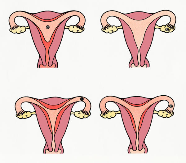 Why is there a higher risk of ovarian tumours in  nulliparous women?