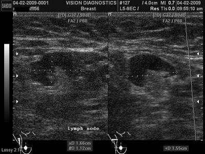 What does a normal lymph nodes look like on a ultrasound color shape the inside?