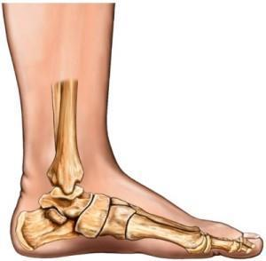 What to do if I get really bad cramps in the arches of my feet. What can I do to remedy this?