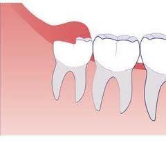 What are the symptoms of tooth infections and of wisdom teeth growing?