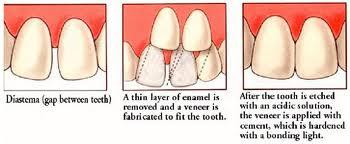 Can lumineers cover the back side of your front tooth?