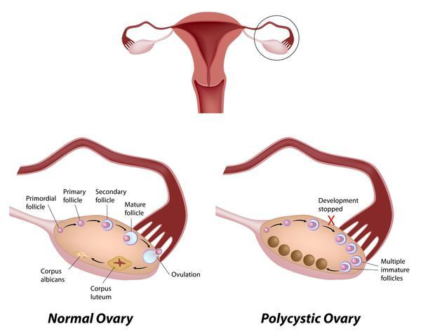 I have pcos my vagina is always dry, get head ached, over weight and hard to lose weight. Could it be due to low estrogen?
