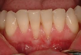 I use a soft manual brush with soft stroke, use niteguard, floss. What situation is grafting not an option when there is significant gum recession?
